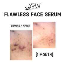 Load image into Gallery viewer, Organic Flawless Face Serum - before and after jawline cystic acne
