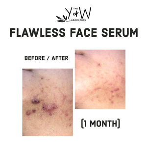 Organic Flawless Face Serum - before and after jawline cystic acne