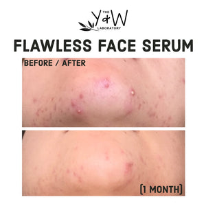 Organic Flawless Face Serum - before and after jawline acne