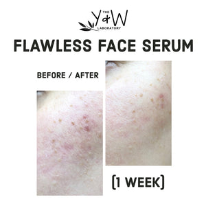Organic Flawless Face Serum - before and after facial redness