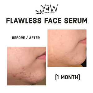Organic Flawless Face Serum - before and after chin acne scars