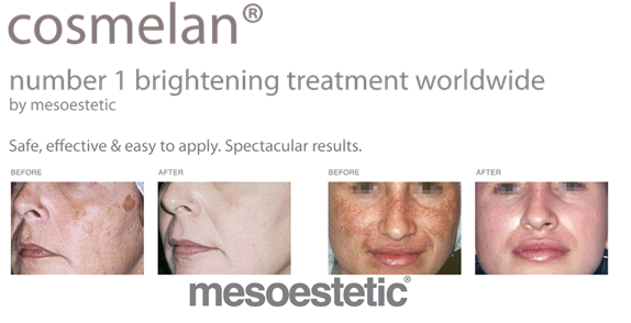 Cosmelan® Professional Treatment