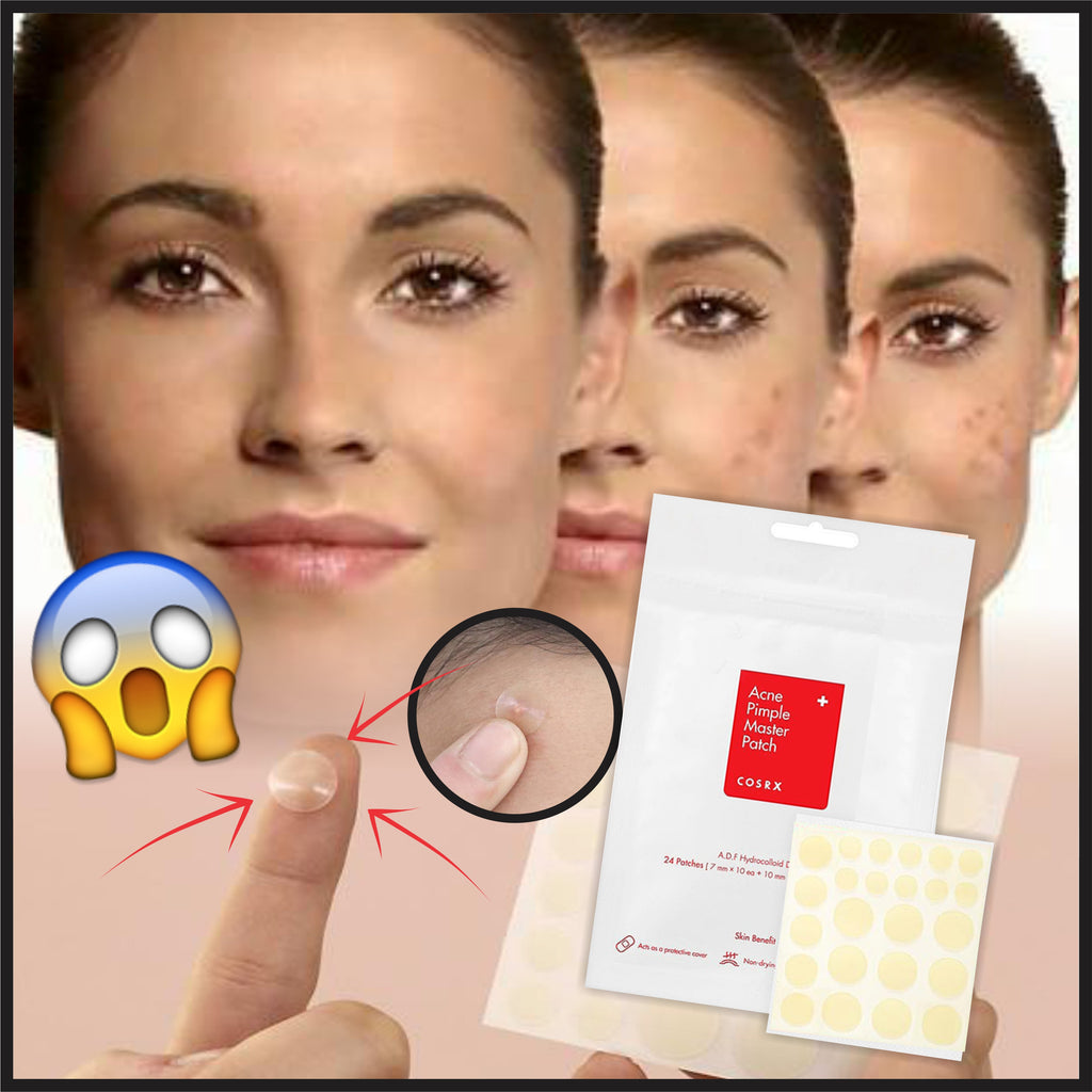 SpotFIX Anti Pimple + Acne Patches