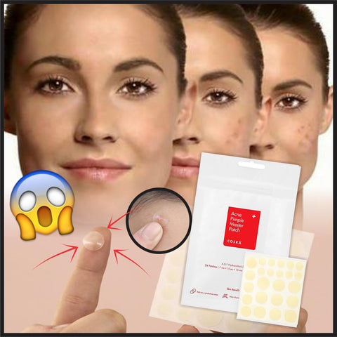 Image of SpotFIX Anti Pimple + Acne Patches