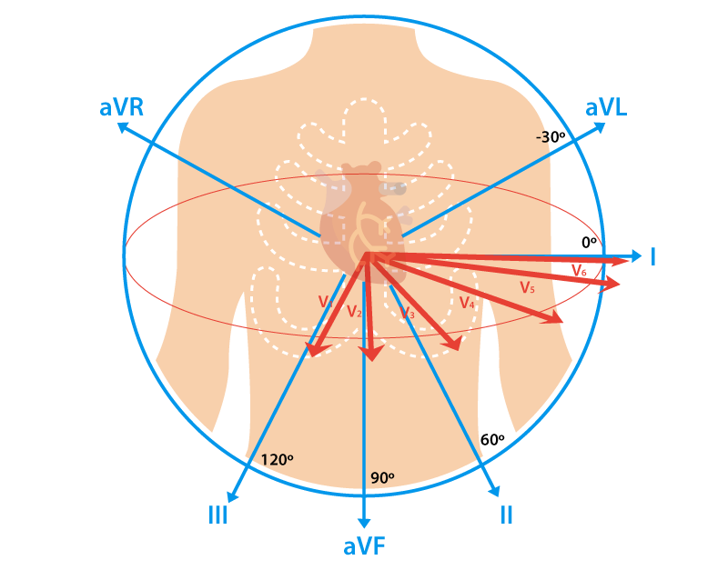 12-Lead ECG Placement Guide with Illustrations