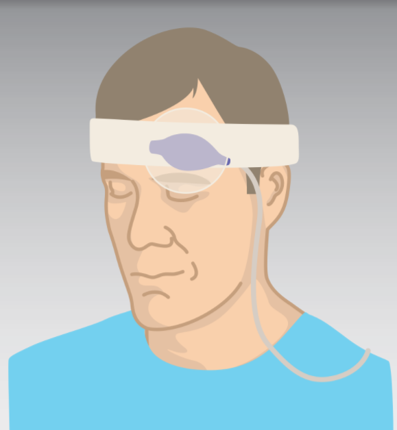 Pulse oximetry reflectance probe attached low across a patient's forehead