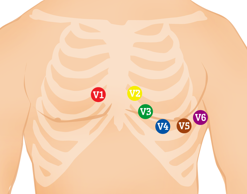Chest (Precordial) Electrodes and Placement. »