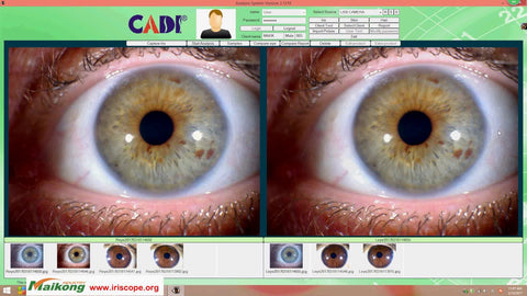 iridology camera australia
