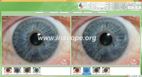 IRISCOPE 12MP 2019 Hot!