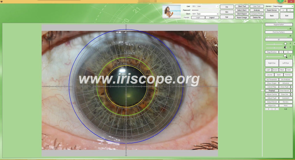 5PCS IRISCOPE 12MP 2020 Hot! +2PC 9809U