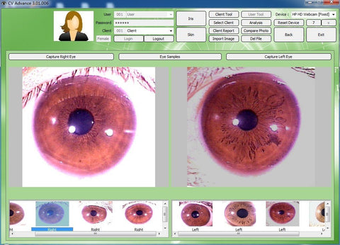 iridology camera with english and spanish iridology software