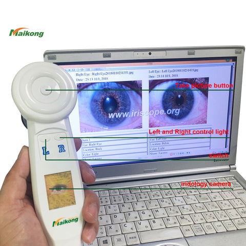 5MP Portable iriscope Usb iridology camera