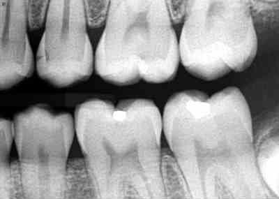 Dental X-rays – Are They Safe and Necessary?