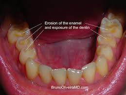 Teeth with enamel erosion due to acid reflux or GERD