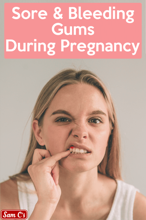 Sore And Bleeding Gums During Pregnancy