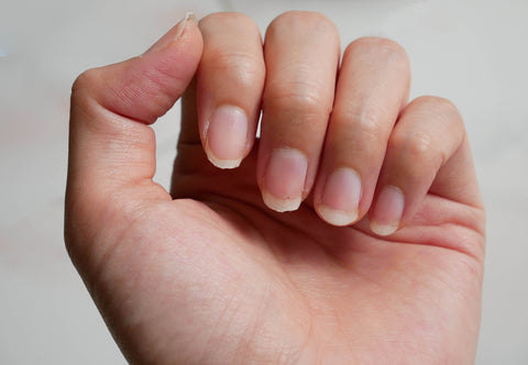 brittle nails during pregnancy
