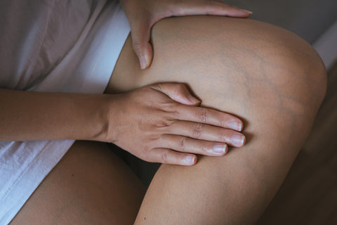 visible veins during pregnancy