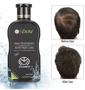 (PROMO 70% OFF! & BUY1 TAKE 1) Authentic DeXe Anti-Hair Loss Shampoo (TOP BRAND IN U.S)