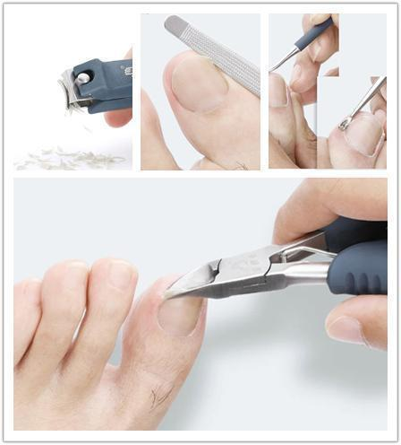 50%OFF Today!!!Precision Toe Nail Clipper Tool