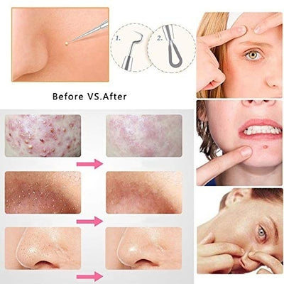 7pcs Blackhead Whitehead Pimple Spot Comedone Acne Extractor Remover Popper Tool Kit