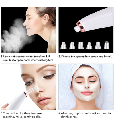 Electric Blackhead Cleaning Facial Instrument