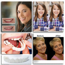 Load image into Gallery viewer, Flex Cosmetic Full Set Teeth Fake Tooth Cover Dental False Natural Snap T