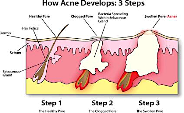 The Rise of Acne: Does it occur overnight?