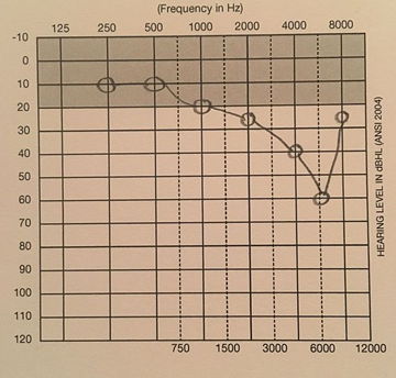 A Graph of Hearing Loss Frequency. If you have Cookie-Bite hearing loss, this is worth checking out.