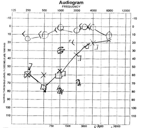 The doctor will share an audiogram with you after a hearing test that looks something like this.