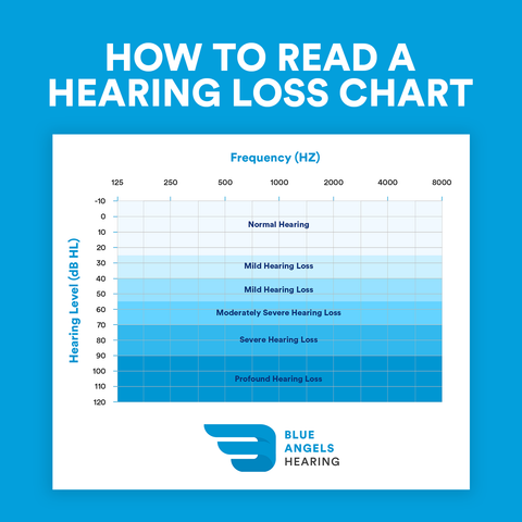How to Read a Hearing Loss Chart - Blue Angels Hearing