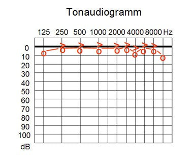 Here is an image of a tonaudiogramm, used to analyze hearing and decibels