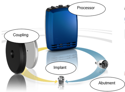 Here are the components of a bone-anchored hearing aid