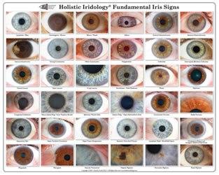 Fundamental Iris Signs