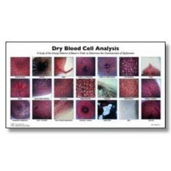 Dried Blood Cell Analysis Chart