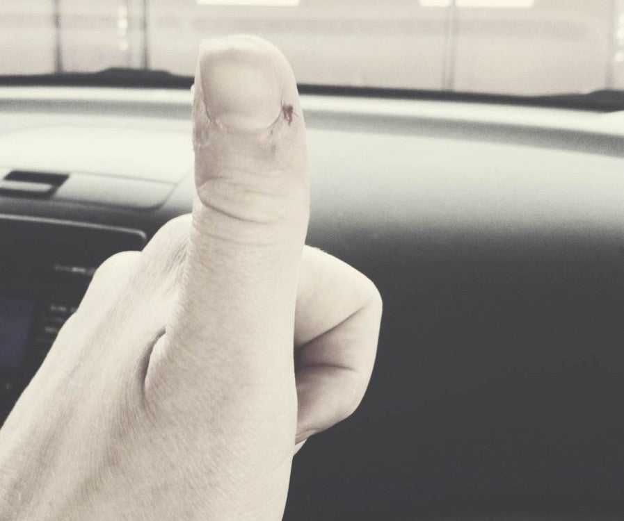 I have a very bad habit of picking my thumbs when I'm nervous.