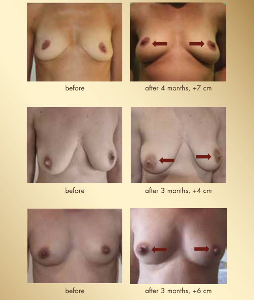 Guna Bioseno Breast Cream