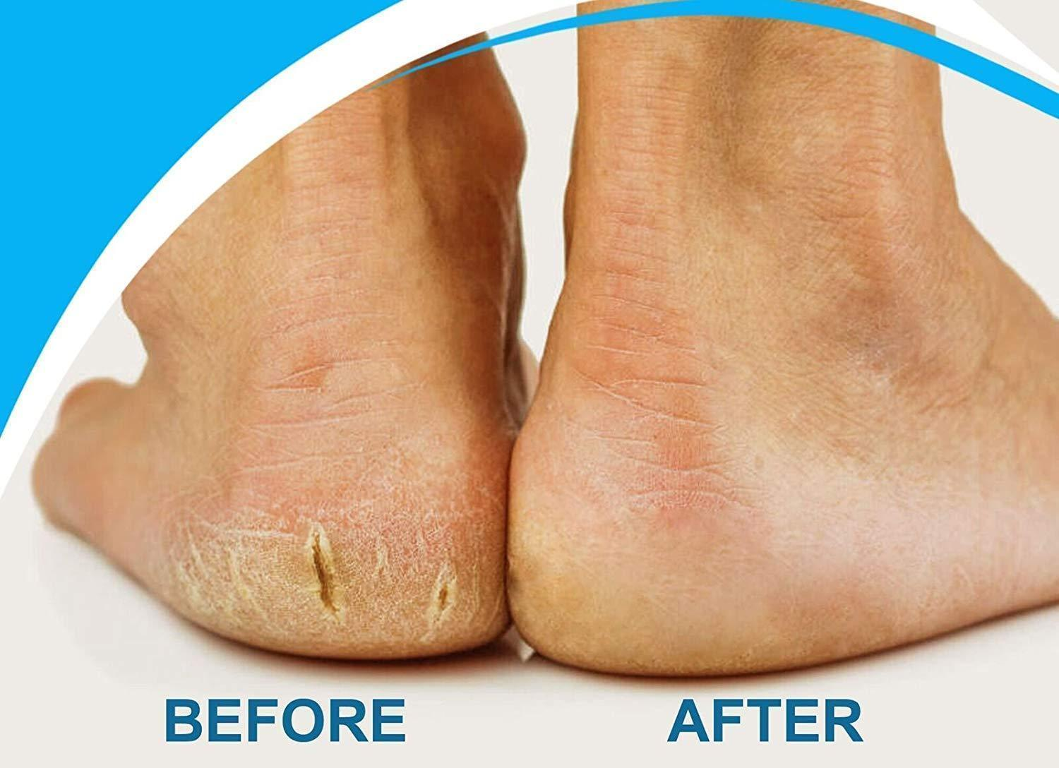 Foot Care Peeling Device