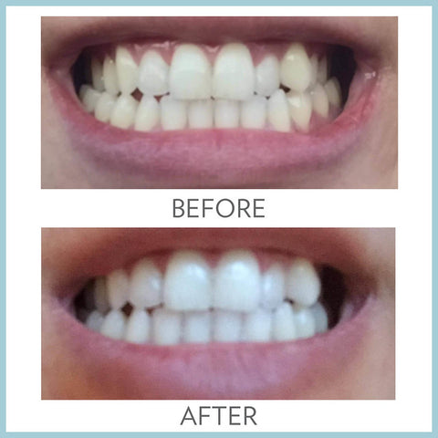 ap24 toothpaste before after result - Beauty Hardy