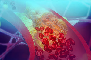 Why Control Cholesterol with Diabetes?