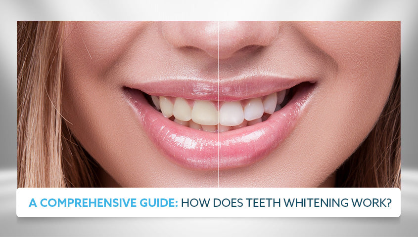 a comprehensive guide how does teeth whitening look