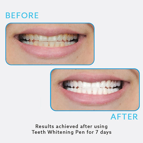 Teeth Whitening Pen Before and After