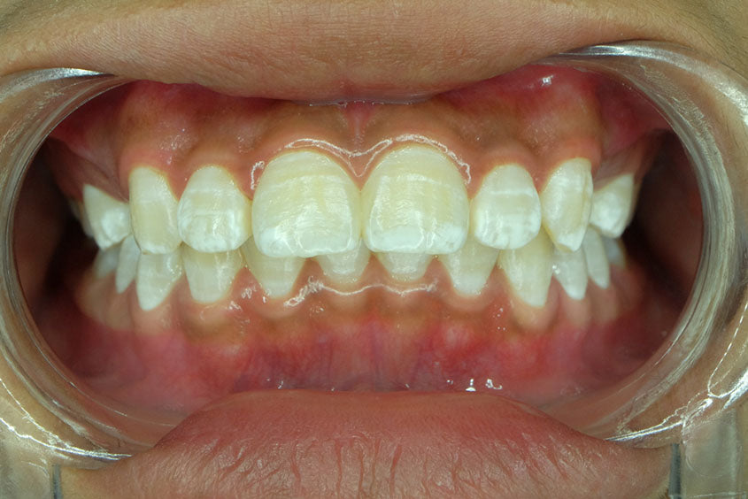 closeup of teeth with fluorosis