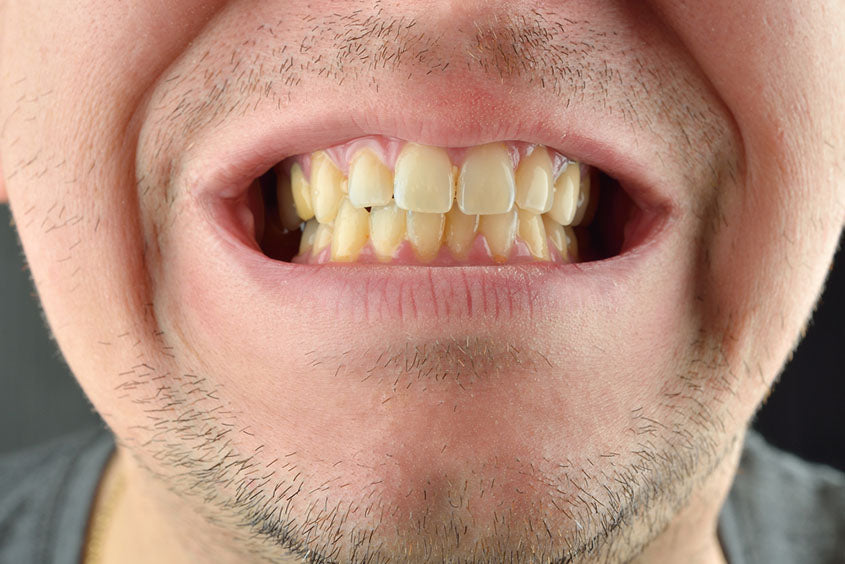 detailed shot man yellowing teeth