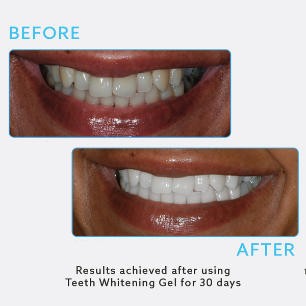 Teeth Whitening Gel (Wholesale)