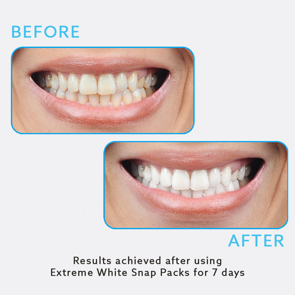 Teeth Whitening Snap Packs