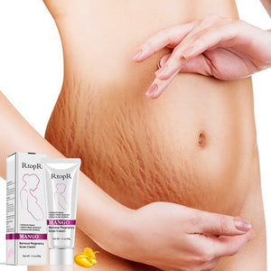 Mango Cream Eliminate Stretch Marks Treatment Repair
