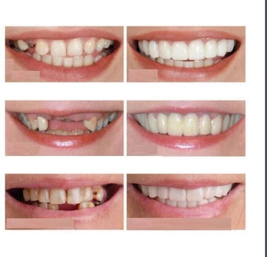 INSTANT PERFECT SMILE UPPER & LOWER CLIP/SNAP ON VENEERS FOR PERFECT TEETH