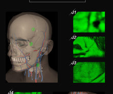 Cargar imagen en el visor de la galería, VF620 Infrared Vein Finder Viewer  -HD display vein imaging light, Vein Illumination Detector, Puncture aid/venous vessel localization finder
