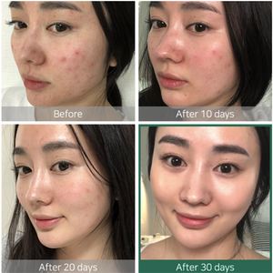 AHA BHA PHA 30 Days Miracle Toner - Tónico Exfoliante - Kocare Beauty