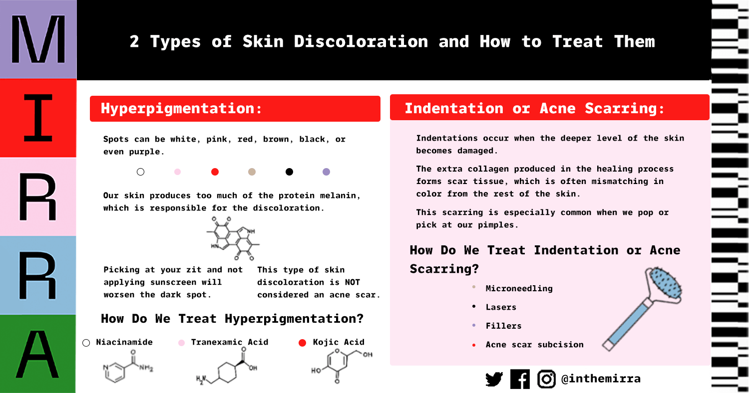 2 Types of skin discoloration and how to treat them infographic